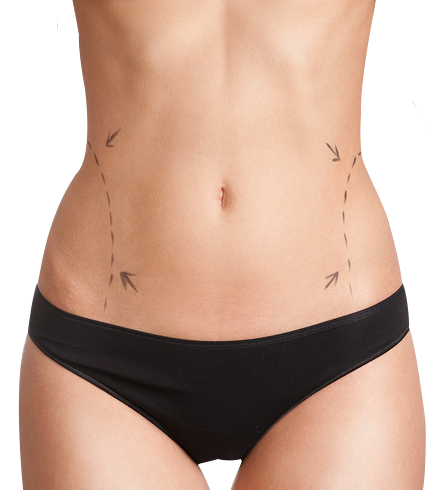 liposuccion et abdominoplastie en Tunisie