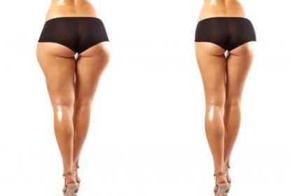 Reduction des seins photos