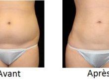 la liposuccion des pubis