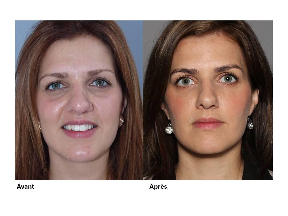 Quels risques pour les injections dans les cernes - Contour des yeux acide hyaluronique ...