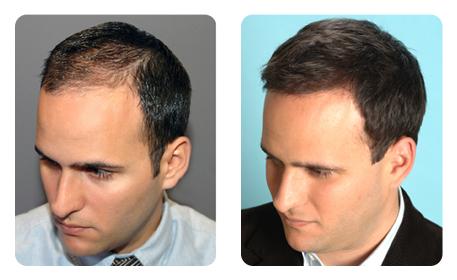 implantation cheveux Tunisie
