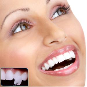 Chirurgie dentaire prix