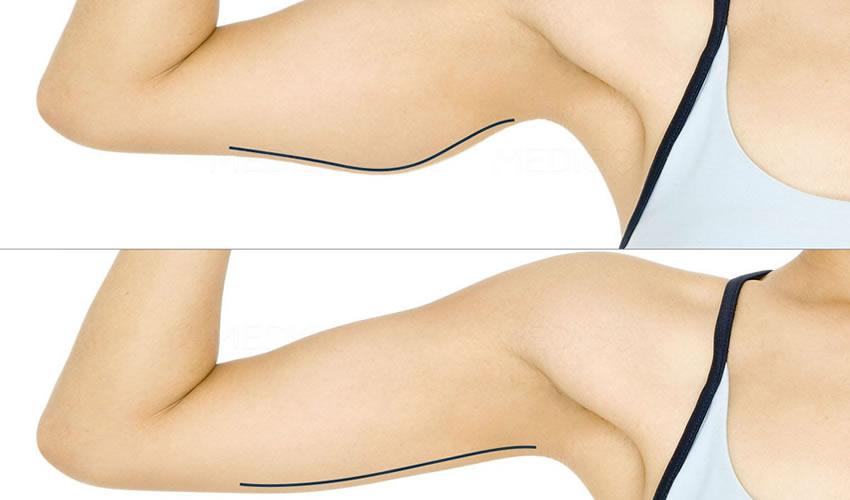 liposuccion laser des bras