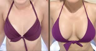 lipofilling mammaire en Tunisie