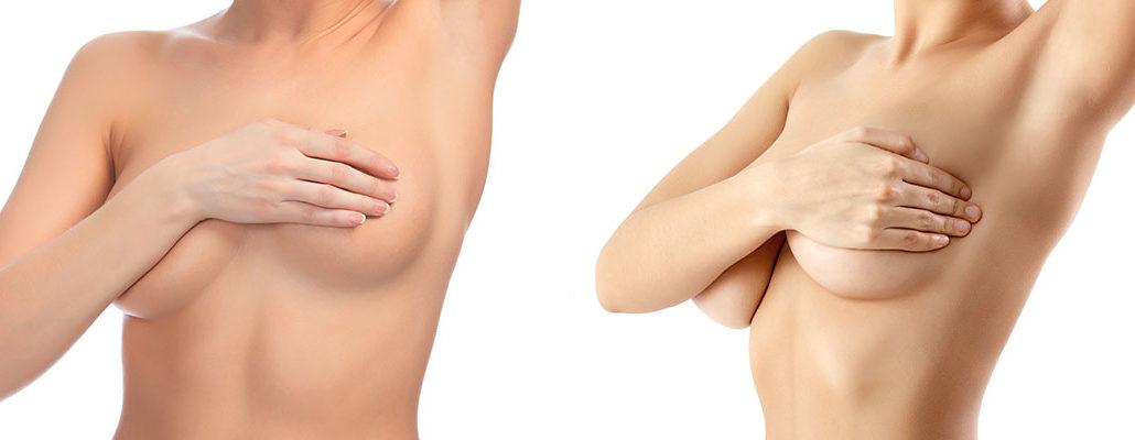 lifting des seins associée à l'augmentation mammaire