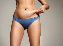 liposculture intervention