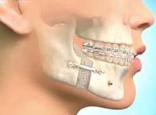 chirurgie orthognatique.